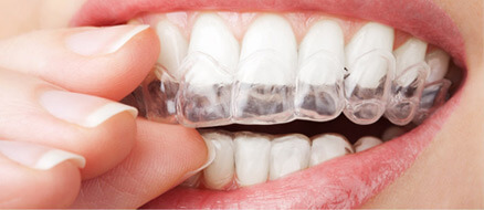 Invisalign Advanced Orthodontics